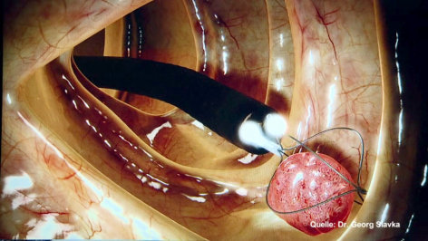 treffpunkt medizin  Bauchgehirn & Lebenszentrum: Der Darm