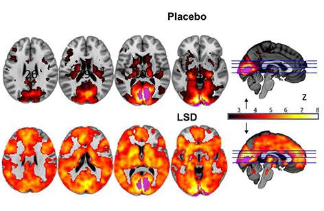 Gehirnbilder, die LSD-Gehirn mit Placebo-Gehirn vergleichen