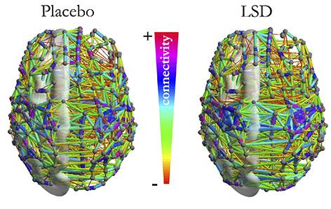 Grafik: unterschiedliche Vernetzung im Gehirn von LSD-Probanden und Placebo-Vergleich