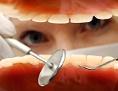 der geöffnete Mund eines Zahnarztpatienten