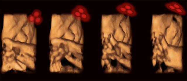 Ultraschallaufnahmen von Ungeborenen