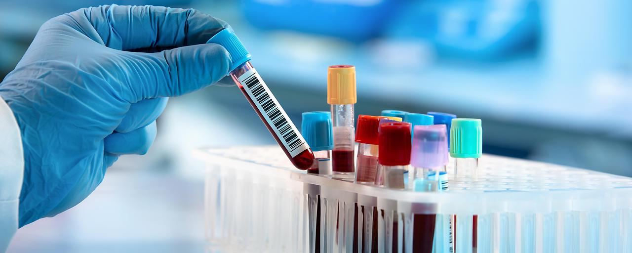 Antikörpertest kommt nach Österreich