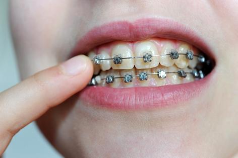 Wer hat Anrecht auf eine Gratis-Zahnspange? - oe3.ORF.at