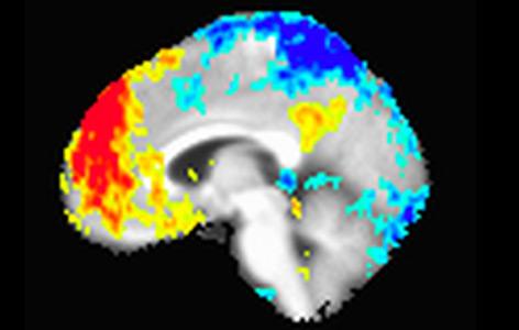 fMRT-Bild eines Gehirns