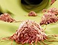 Künstlerische Darstellung: Krebszellen in menschlichem Gewebe