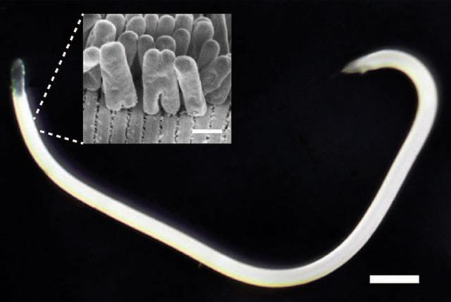 Der Fadenwurm und seine Symbionten, die Bakterien (Maßstab: fünf Mikrometer)