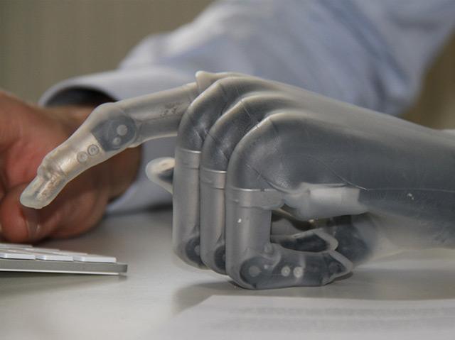 Künstliche Hand des ohne Unterarm geborenen Sozialpsychologen Bertolt Meyer
