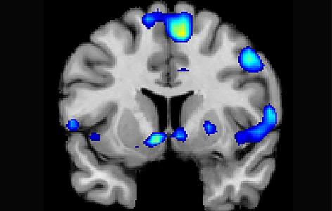 So sieht ein religiöses Gehirn aus