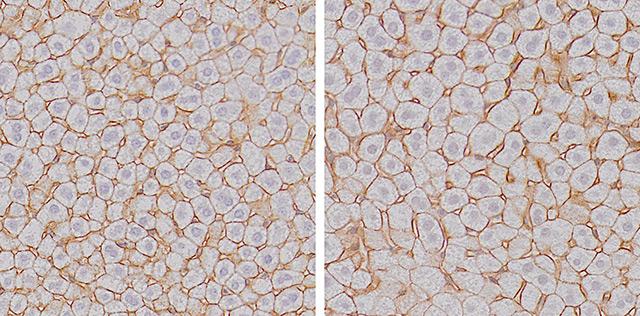 Leberzellen unter dem Mikroskop
