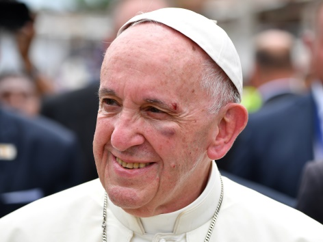 Papst bei Bremsmanöver leicht verletzt