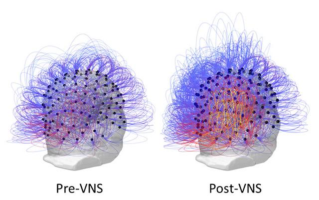 Diagramm von Hirnbereichen und ihrer Kommunikation