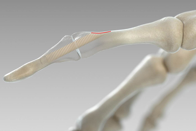 Schraube aus Knochen