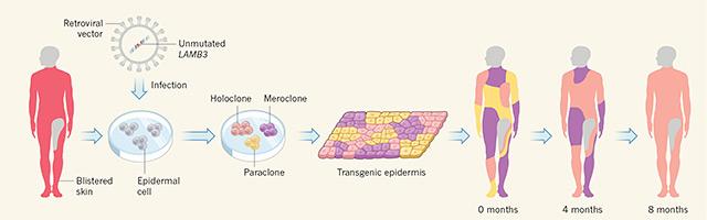 Grafik: Gentherapie für Schmetterlingskrankheit