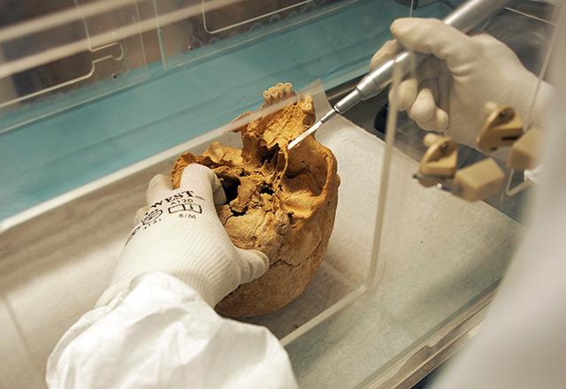 Entnahme einer Probe aus einem steinzeitlichen Schädel im Labor
