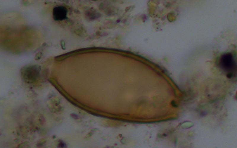 Fossile Eier von Darmparasiten