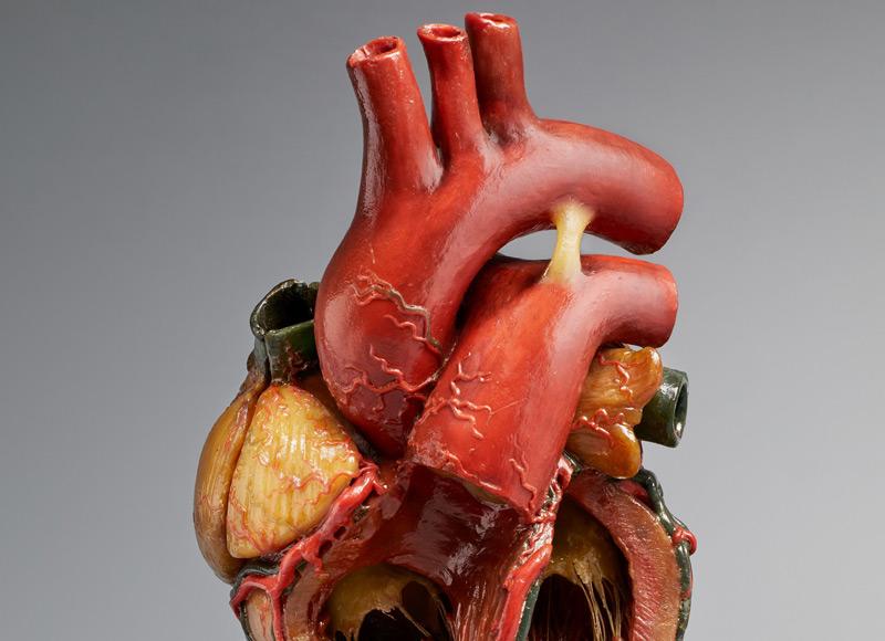 Da Vincis anatomische Studien inspirieren Herzchirurgen - science.ORF.at