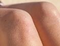 Nackte Knie mit Gänsehaut