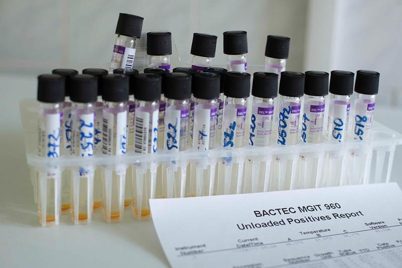 Phiolen mit Blutproben, daneben ein Analysebericht