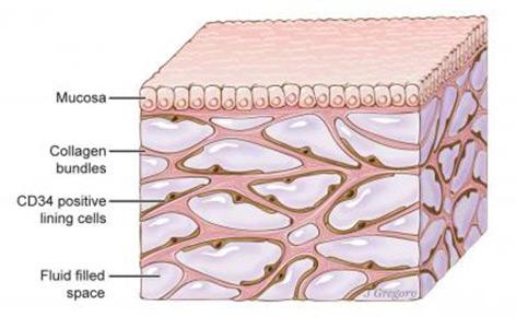Grafik: Gewebe mit Hohlräumen