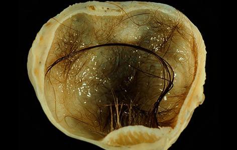 Teratom eines Eierstocks mit Hautgewebe