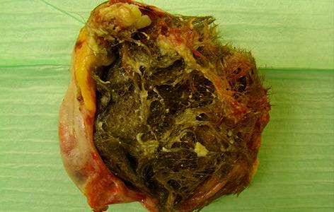 Teratom eines Eierstocks mit Haaren und Zähnen