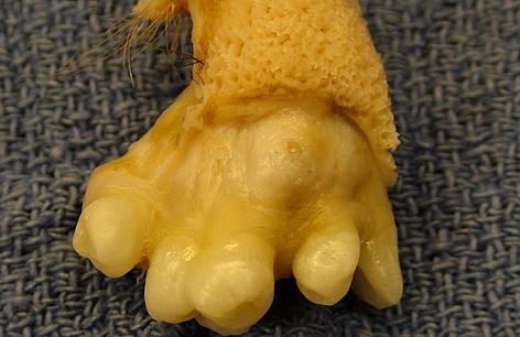 Gewebe mit Zähnen, Haut und Haaren aus einem Teratom des Eierstocks