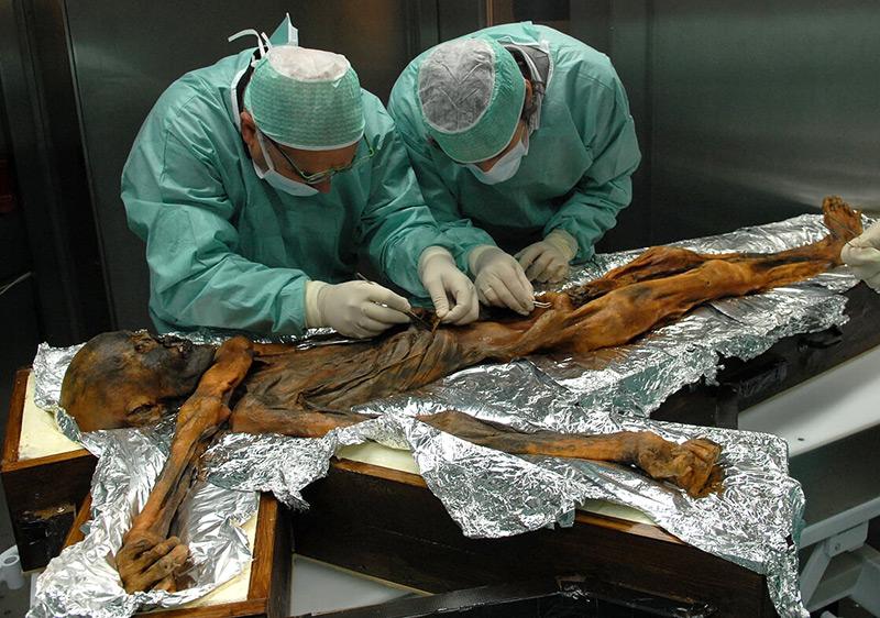 """Forscher untersuchen die Eismumie """"Ötzi"""""""