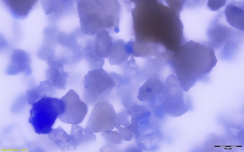 Lapislazuli-Partikel im Zahnstein einer mittelalterlichen Frau