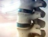 Rückenschmerzen, Arthrose