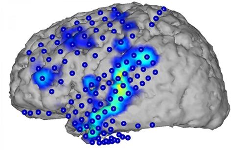 Hier spricht das Gehirn