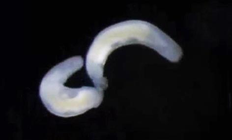 Die winzigen Plattwürmer unter dem Mikroskop