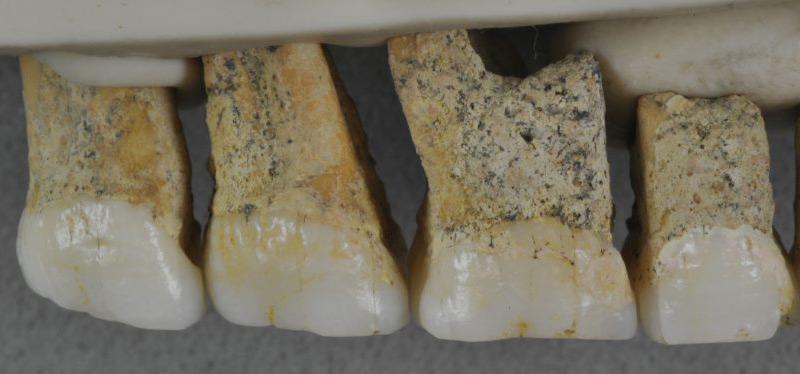 Rechte obere Zähne eines der Homininen