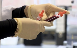 Cholesterin, Blutdruck und Co - Das Geschäft mit den Grenzwerten