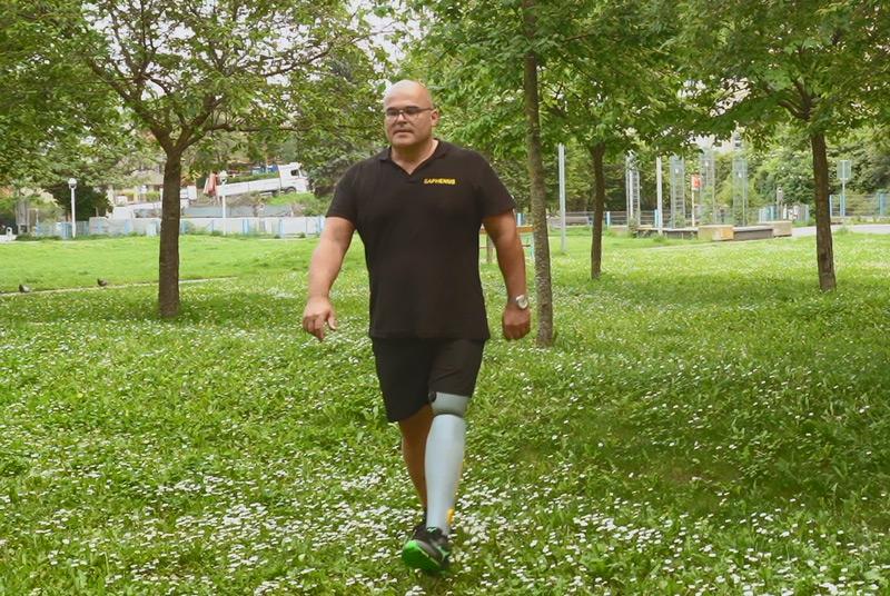 Vom Labor ins Leben: Fühlende Prothese marktreif – science.ORF.at