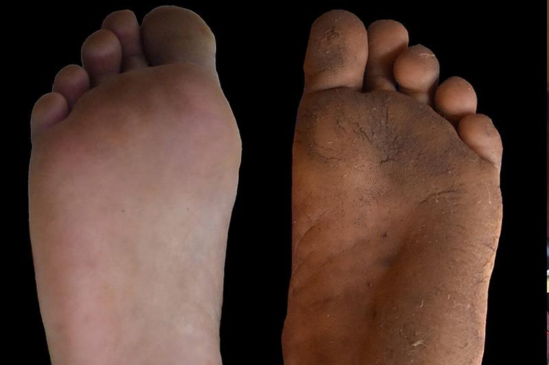 Hornhaut an den Füßen hat viele Vorteile – science.ORF.at