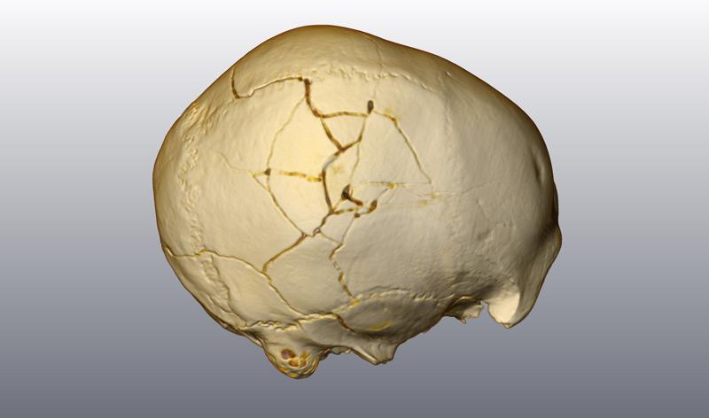 Zwei kleine Narben und eine größere Fraktur verlaufen über den 33.000 Jahre alten Frühmenschen-Schädel, der in der rumänischen Cioclovina-Höhle gefunden wurde