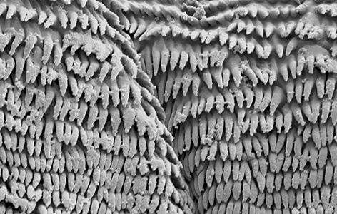 """Die nur einen Mikrometer dicken """"Klebehärchen"""" der Maden unter dem Mikroskop"""