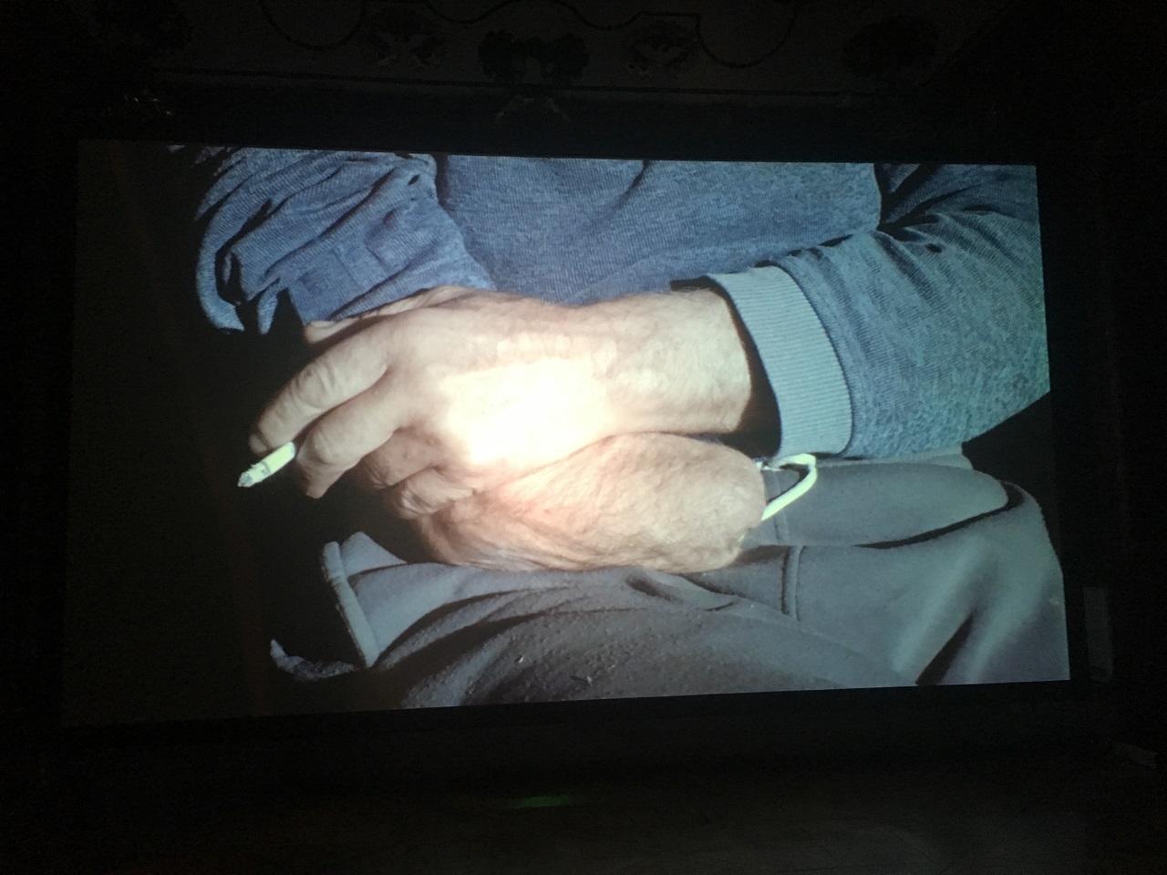 """Ein Mann nach einem Arbeitsunfall: Eine Hand fehlt ihm, der Arm ist ein Stumpf. Ein Filmstill aus dem Film """"The invisible hand of my father"""" von Giorgi Gago Gagoshidze"""