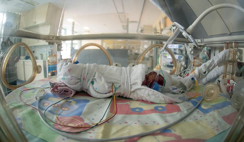 Frühgeborenes Baby auf der Intensivstation