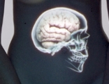 Der kluge Bauch - Unser zweites Gehirn