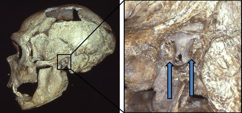 Neandertalerschädel und vergrößert: Kochenauswuchs im Ohr